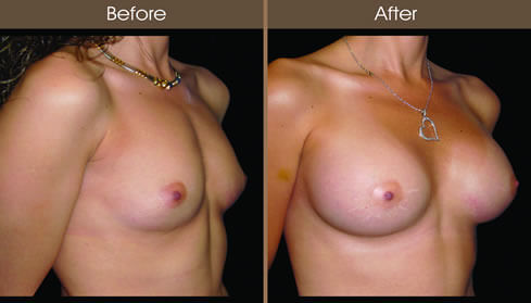 Breast Implant Before And After Right Quarter View