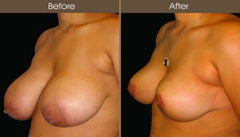 Breast Reduction Before And After Left Quarter View