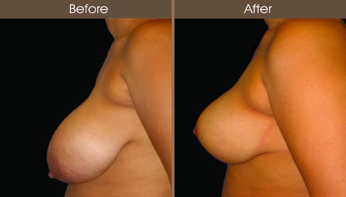 Breast Reduction Before And After Left Side View