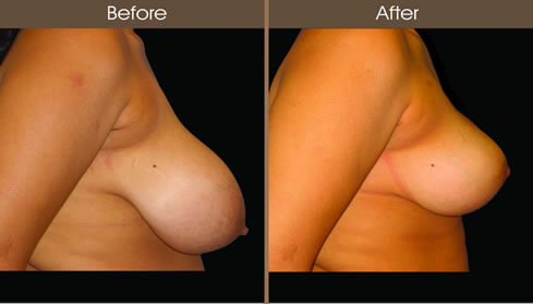Breast Reduction Before And After Right Side View