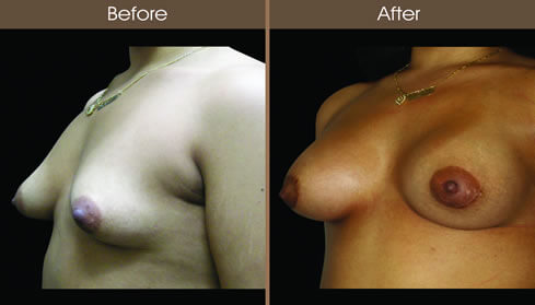 Breast Asymmetry Before And After Left Quarter View