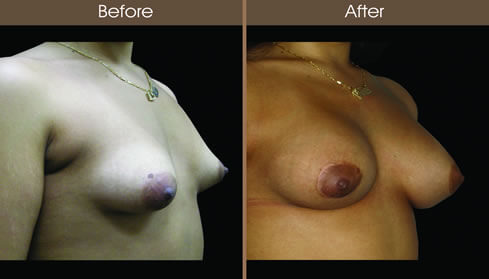 Breast Asymmetry Before And After Right Quarter View