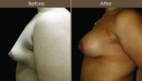 Breast Asymmetry Before And After Left Side View