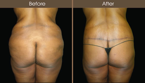 Body Lift Surgery Results