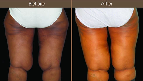 Thigh Lift Surgery Results