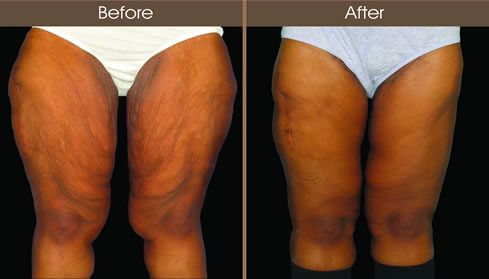 Thigh Lift Before And After