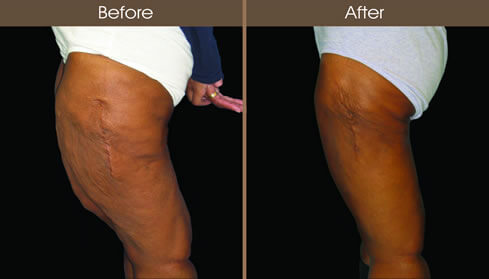 Before And After Thigh Lift Surgery