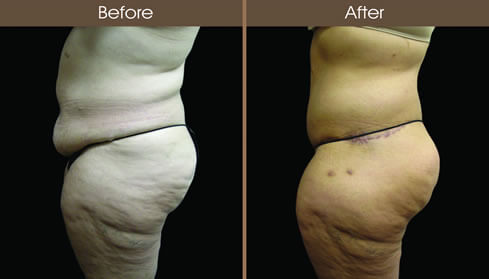 Before And After Buttocks Augmentation