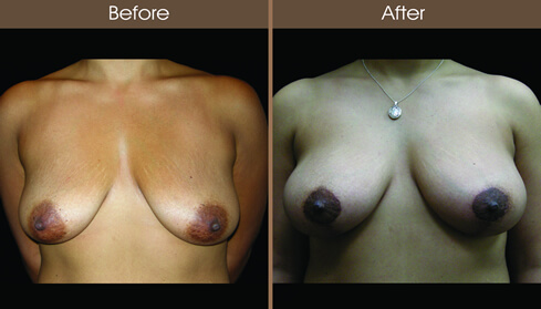 Breast Lift Surgery Before And After