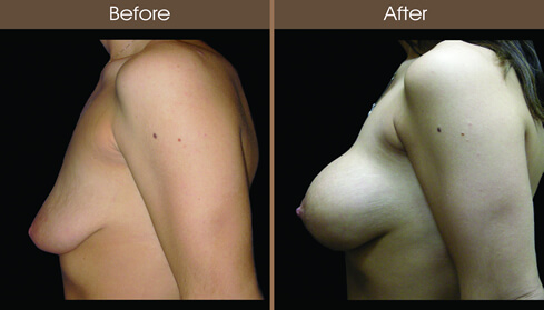 Breast Lift Before And After Side View