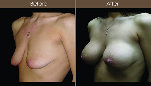 Before And After Mastopexy Surgery
