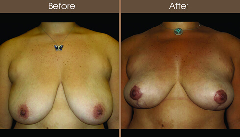 Breast Lift Before And After Front Image