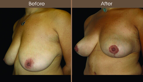 Breast Lift Before And After Left Quarter Image