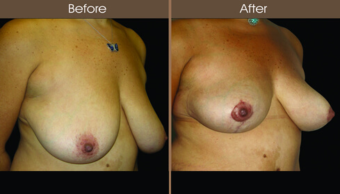 Breast Lift Before And After Right Quarter Image