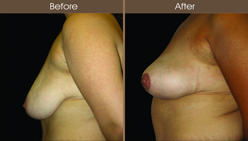 Breast Lift Before And After Left Side Image