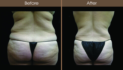 Lipo Before And After Back View