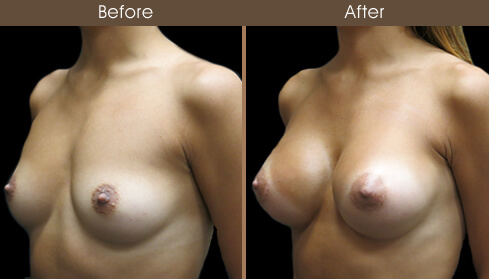 Breast Augmentation Surgery Before And After Left Quarter View