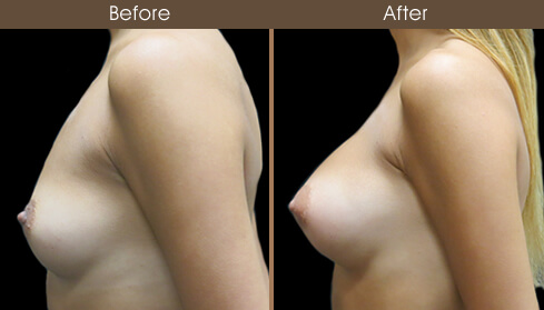 Breast Augmentation Surgery Before And After Left Side View