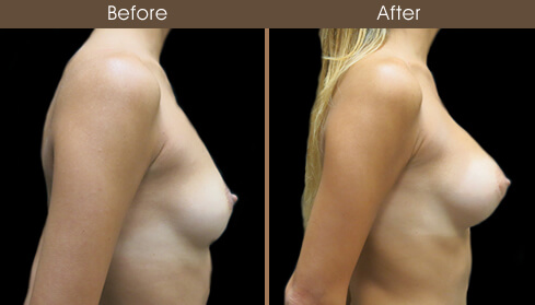Breast Augmentation Surgery Before And After Right Side View