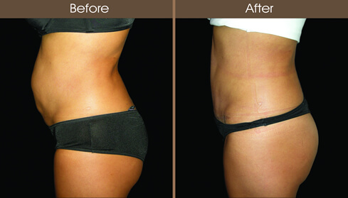 Tummy Tuck Surgery Left Side View