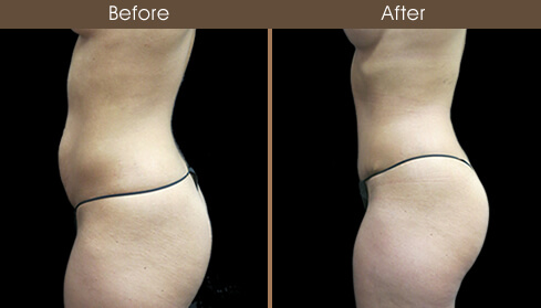 Mommy Makeover Abdominoplasty Results