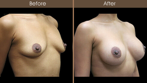Mommy Makeover Breast Augmentation Results