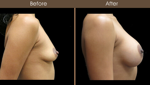 Mommy Makeover Breast Implant Results