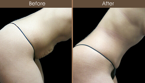 Mommy Makeover Tummy Tuck Results