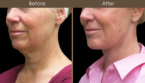 Neck Lift Before And After Left Quarter View