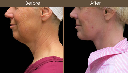 Neck Lift Before And After Left Side View