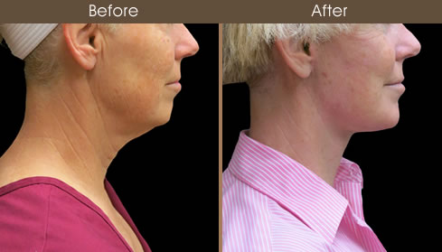 Facelift Before And After Right Side Image