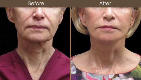 Facelift Surgery Before And After Front View