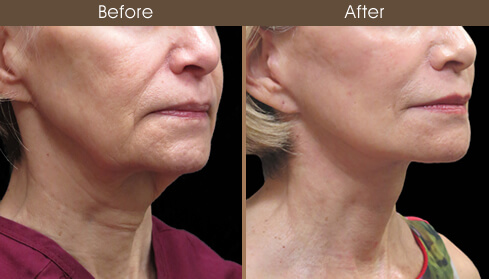 Facelift Surgery Before And After Right Quarter View