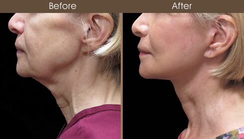 Facelift Surgery Before And After Left Side View