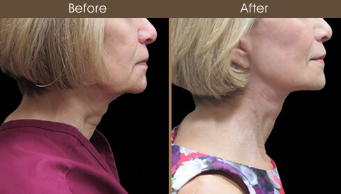 Facelift Surgery Before And After Right Side View