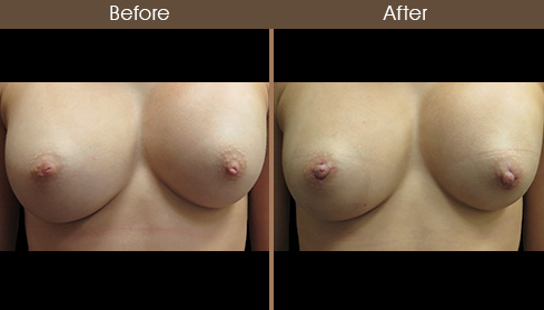Inverted Nipple Correction Before & After