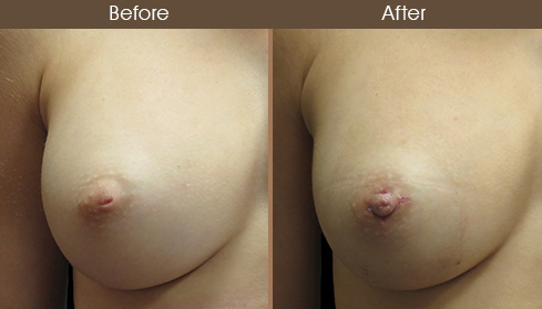 Inverted Nipple Surgery Before & After Results