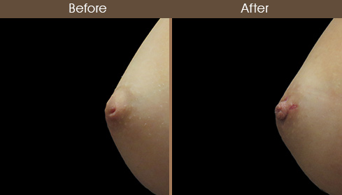 Inverted Nipple Surgery Before & After