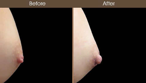 Inverted Nipple Correction Results