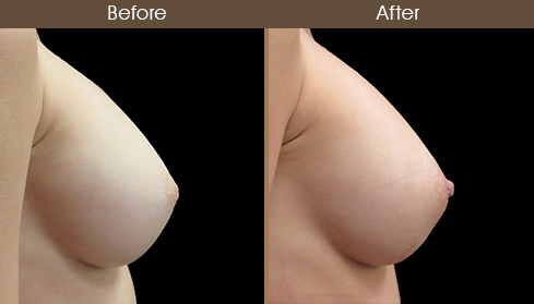 Before & After Inverted Nipple Correction