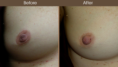 Inverted Nipple Correction Before And After