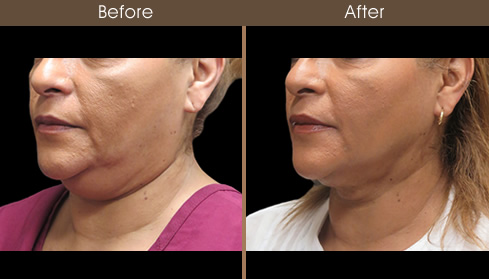 Neck Liposuction Before And After Left Quarter View