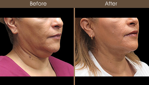 Neck Liposuction Before And After Right Quarter View