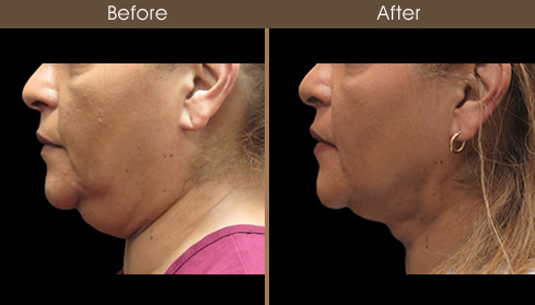 Neck Liposuction Before And After Left Side View