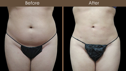 Lipo Before And After Front Image