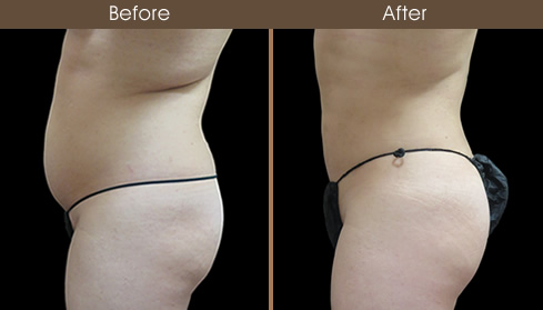 Lipo Before And After Left Side Image