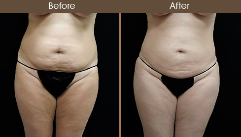 Liposuction Surgery Before & After Front Image