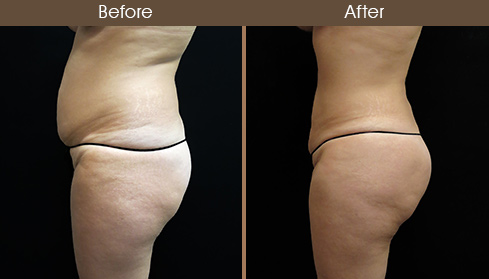 Liposuction Surgery Before & After Left Side Image