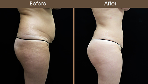 Liposuction Surgery Before & After Right Side Image