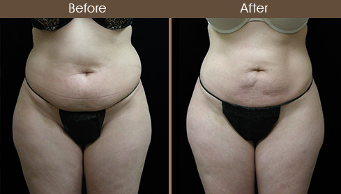 Lipo Surgery Before & After Front View